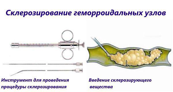 Склеротерапия геморроидальных узлов