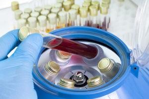 Центрифуга крови