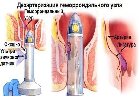 Стоимость операций при геморрое в Москве