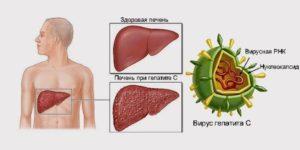Лечение гепатита печени