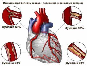 Лечение ишемической болезни сердца
