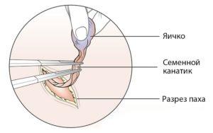 Орхиэктомия —операцияудаления яичек