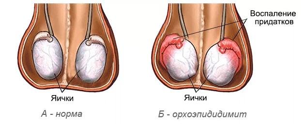 Орхоэпидидимит. Лечение орхоэпидидимита в центре урологии.