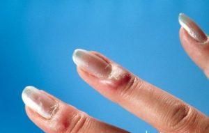 Паронихия на пальце