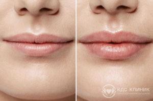 Контурная пластика губ фото до и после