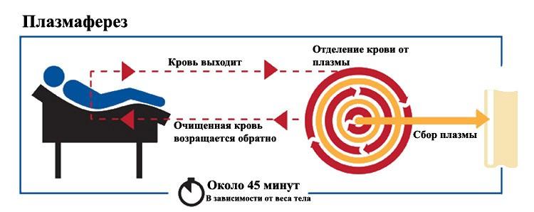 Очищение крови с помощью плазмофереза