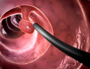 Эндоскопическая полипэктомия желчного пузыря где thumbnail