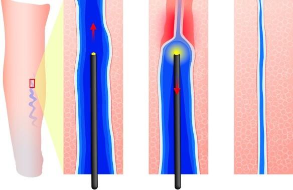 Радиочастотная абляция вен (РЧА) для лечения варикоза