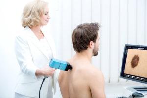 Дерматоскопия родинок. Проверить родинку на онкологию