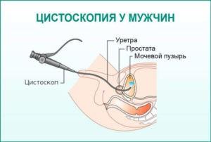 Цистоскопия с биопсией мочевого пузыря