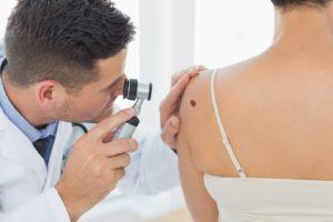 Удаление доброкачественных образований кожи