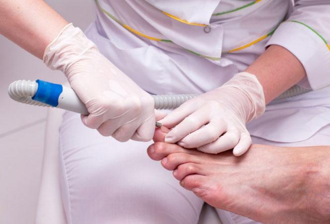 Лечение вросшего ногтя в москве